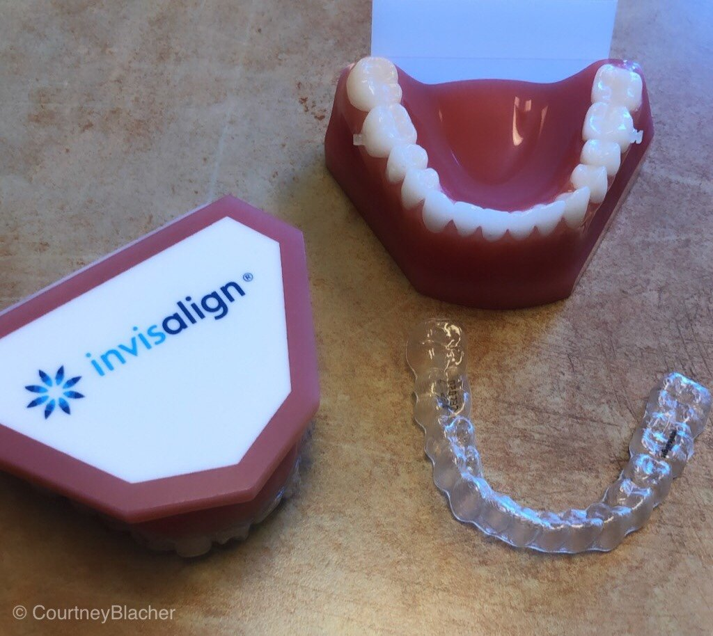 Do you have a teen or tween and are considering Invisalign®? Follow our journey as my daughter gets Invisalign® and we share our tips on Invisalign For Teens and Tweens.